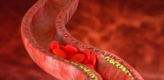 Jak zmniejszyć cholesterol 1